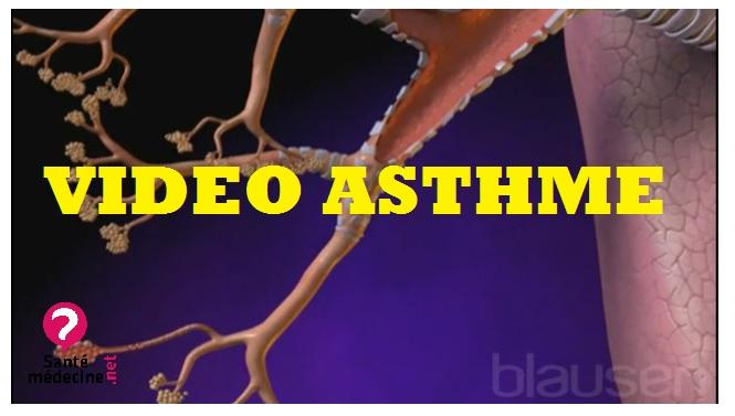 vidéo asthme