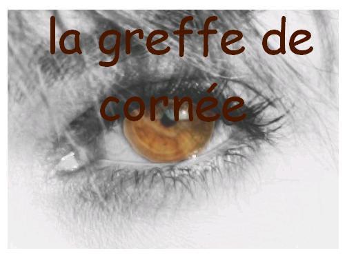 la-greffe-de-cornee