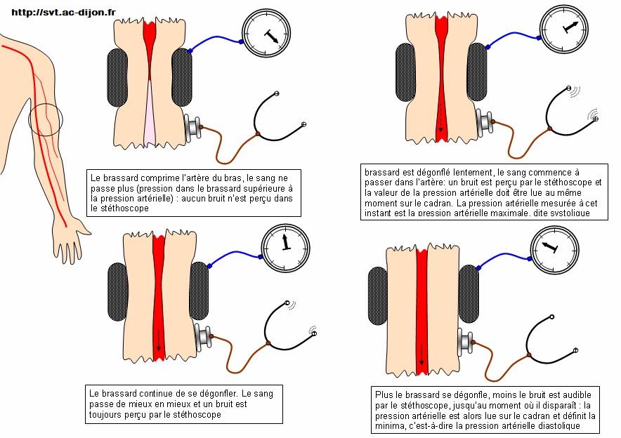 mesure de la pression artérielle SVT 2nde