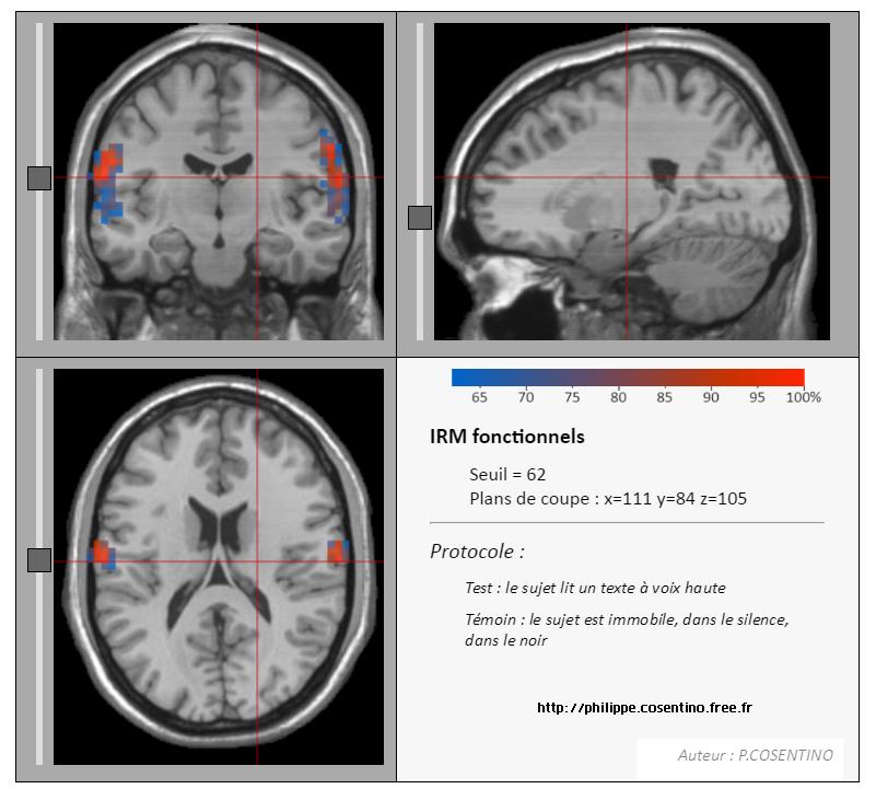 logiciel-irm-anatomique-svt-1ere-cerveau