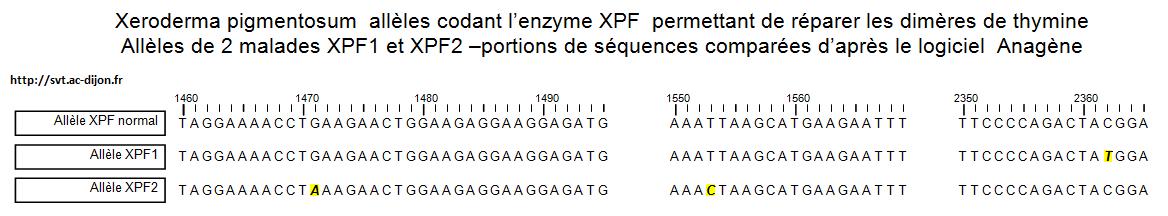 dimère thymine mutation système de réparation xeroderma pigmentosum