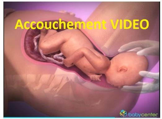 accouchement vidéo
