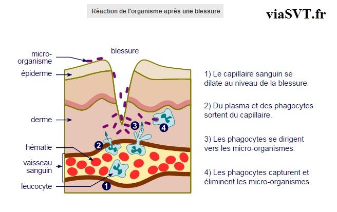 réaction inflammatoire blessure SVT