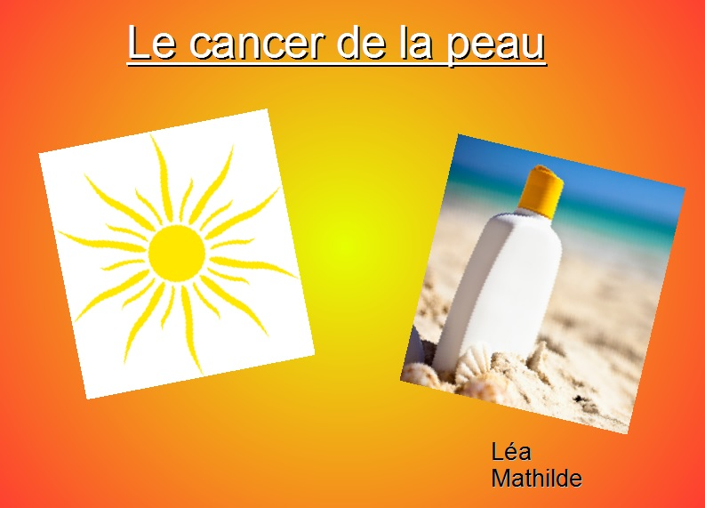 cancer de la peau exposé