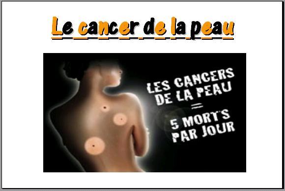cancer-de-la-peau21