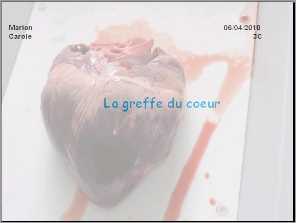 greffe-du-coeur-2