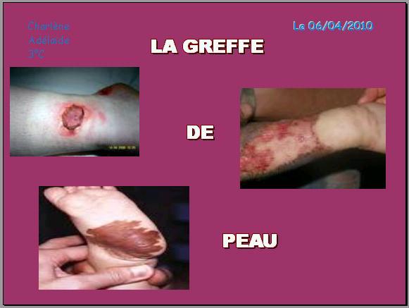 la-greffe-de-peau