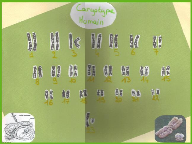 svt-3eme-caryotype