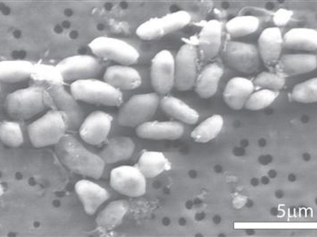 Des bactéries se nourrissent d'arsenic