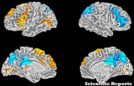 Chaque cerveau est unique