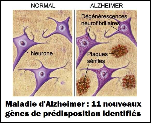 alzheimer 11 gènes de prédispositions identifiés